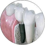 Implant alongside real teeth
